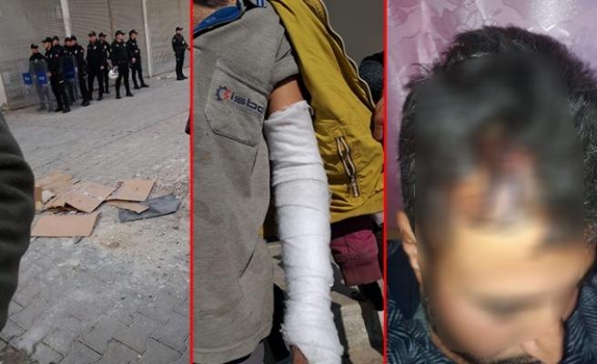 Şanlıurfa'da DEDAŞ işçilerine saldırı: 6 yaralı