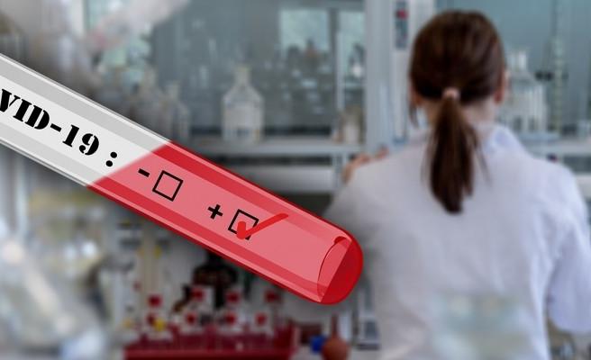 Koronavirüs testinin yapılabileceği hastaneler açıklandı