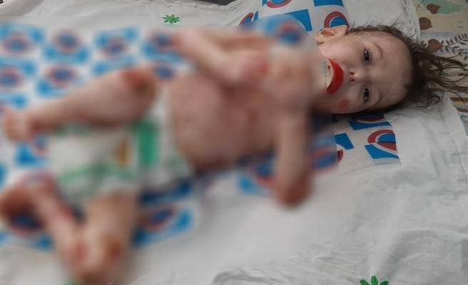 Küçük Abdullatif yaşam mücadelesini kaybetti