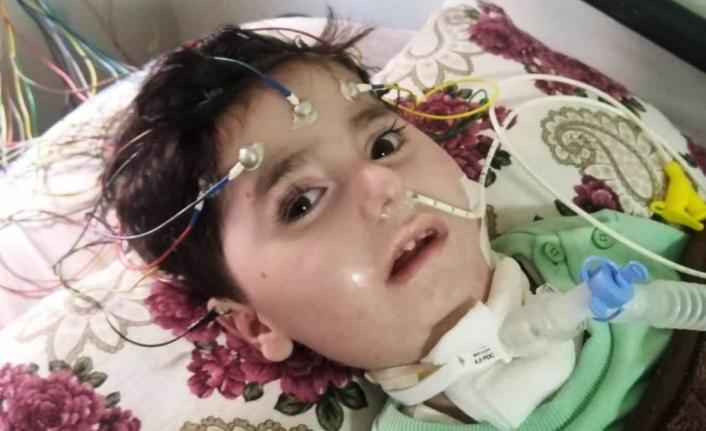 SMA hastası Abdullah yaşam mücadelesi veriyor